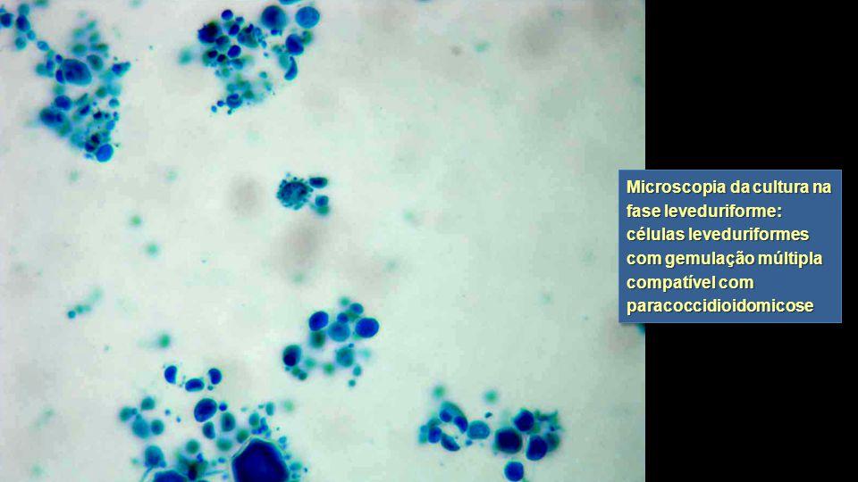 Microscopia da cultura na fase leveduriforme: células leveduriformes com gemulação múltipla compatível com paracoccidioidomicose