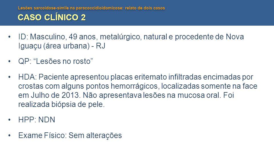 CASO CLÍNICO 2 ID: Masculino, 49 anos, metalúrgico, natural e procedente de Nova Iguaçu (área urbana) - RJ.