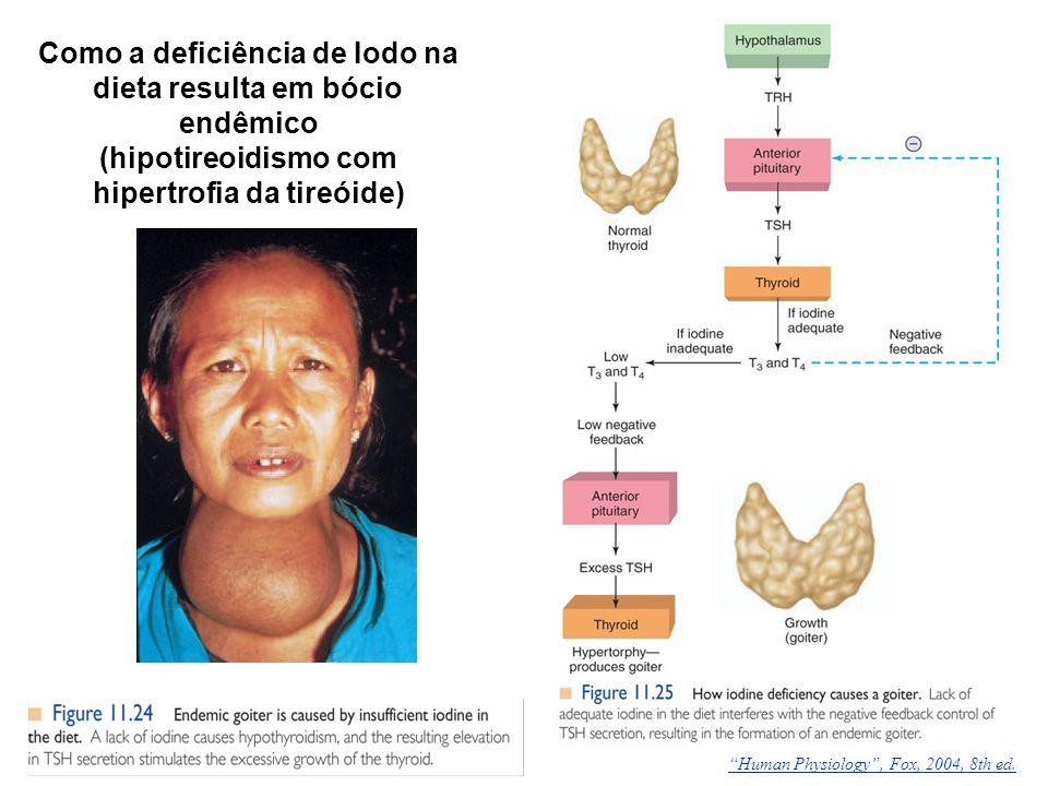 Como a deficiência de Iodo na dieta resulta em bócio endêmico