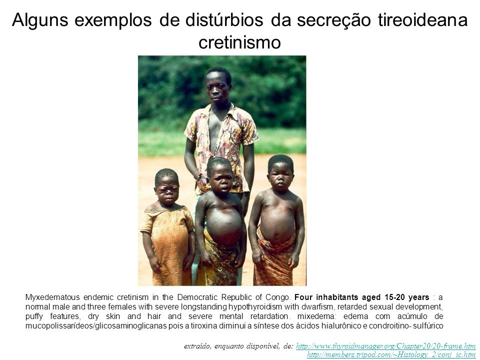 Alguns exemplos de distúrbios da secreção tireoideana