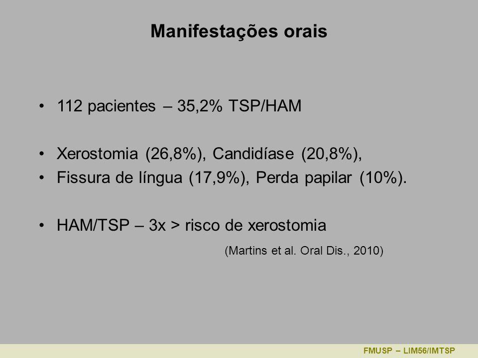 Manifestações orais 112 pacientes – 35,2% TSP/HAM