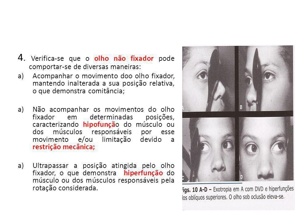 4. Verifica-se que o olho não fixador pode comportar-se de diversas maneiras: