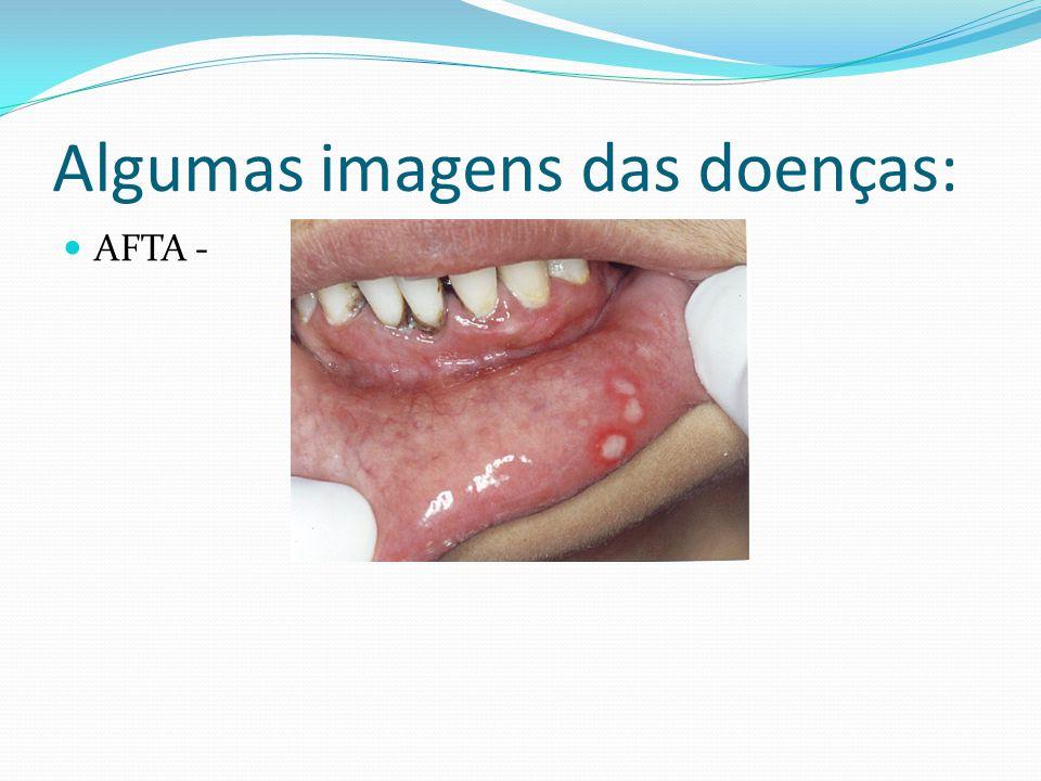 Algumas imagens das doenças: