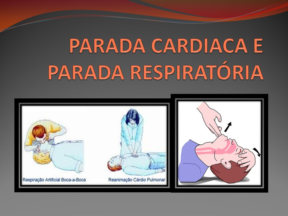 PARADA CARDIACA E PARADA RESPIRATÓRIA