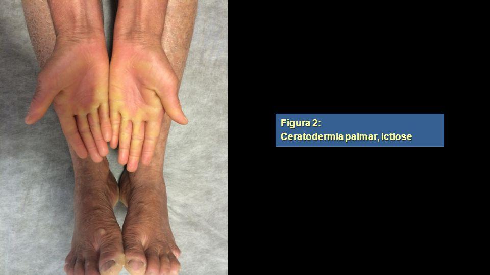 Figura 2: Ceratodermia palmar, ictiose