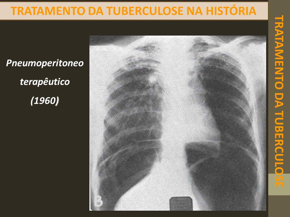TRATAMENTO DA TUBERCULOSE NA HISTÓRIA TRATAMENTO DA TUBERCULOSE