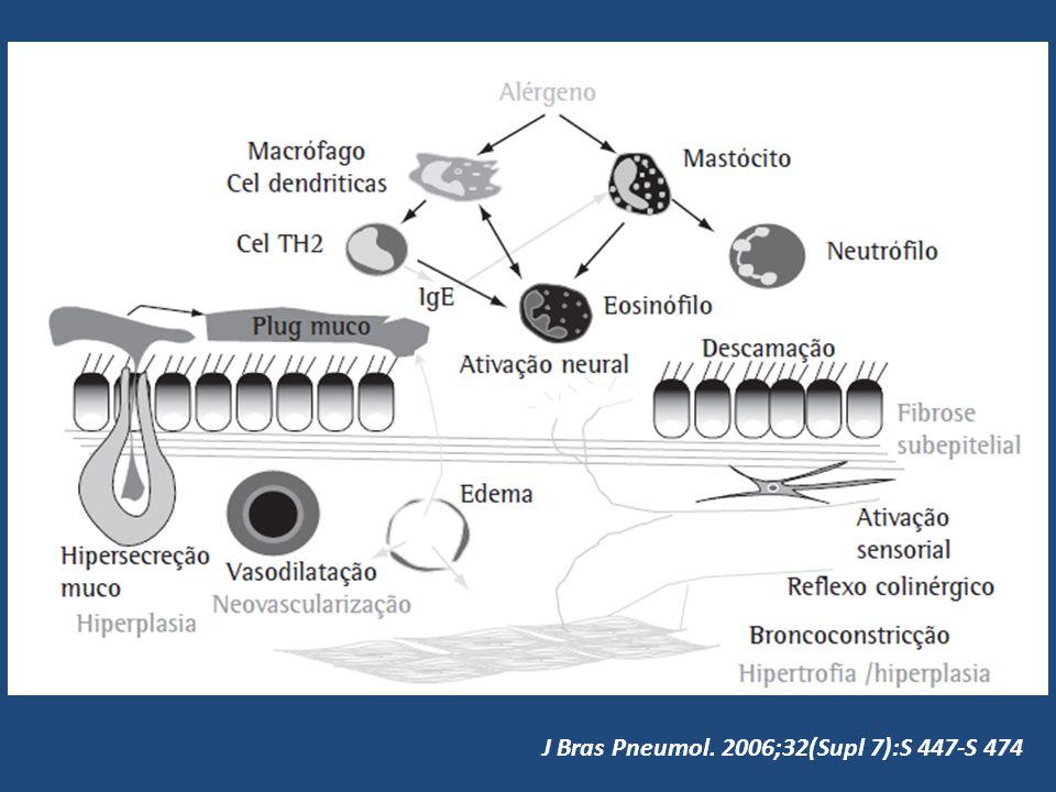 J Bras Pneumol. 2006;32(Supl 7):S 447-S 474