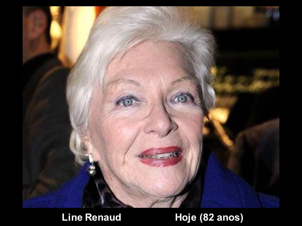 Line Renaud Hoje (82 anos)