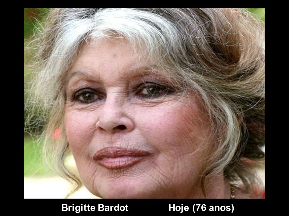 Brigitte Bardot Hoje (76 anos)