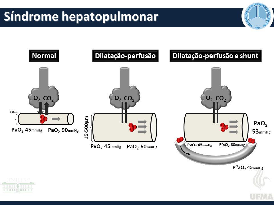 Síndrome hepatopulmonar