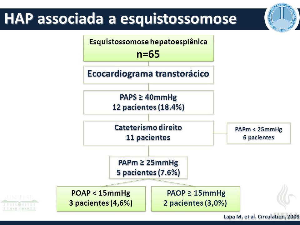 Esquistossomose hepatoesplênica Ecocardiograma transtorácico