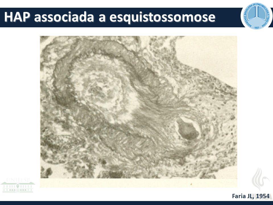 HAP associada a esquistossomose