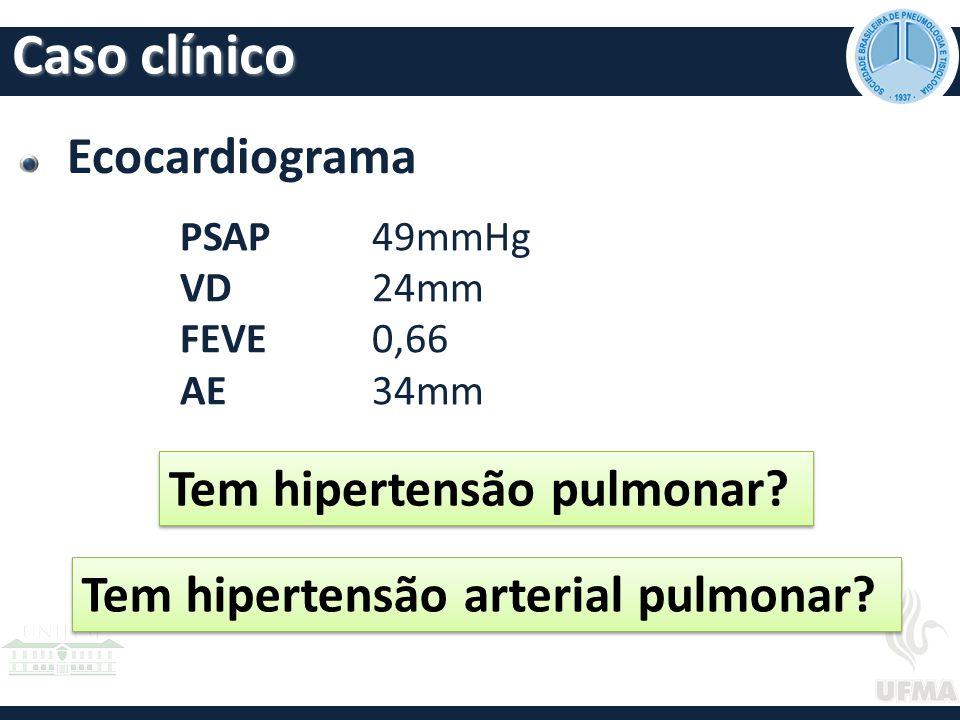 Caso clínico Ecocardiograma Tem hipertensão pulmonar