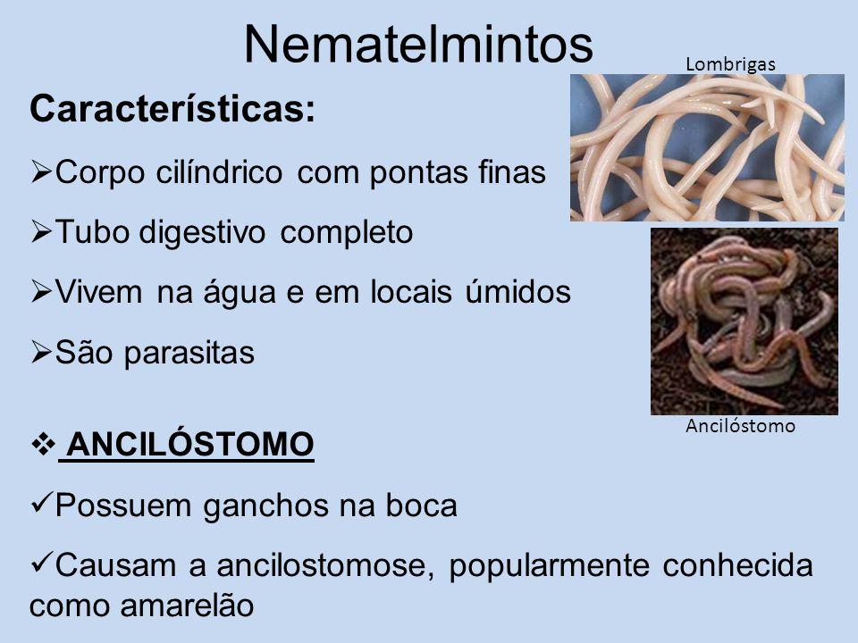 Nematelmintos Características: Corpo cilíndrico com pontas finas