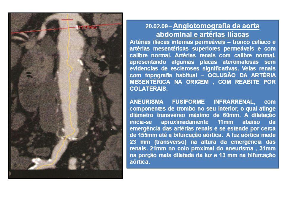 20.02.09 – Angiotomografia da aorta abdominal e artérias ilíacas