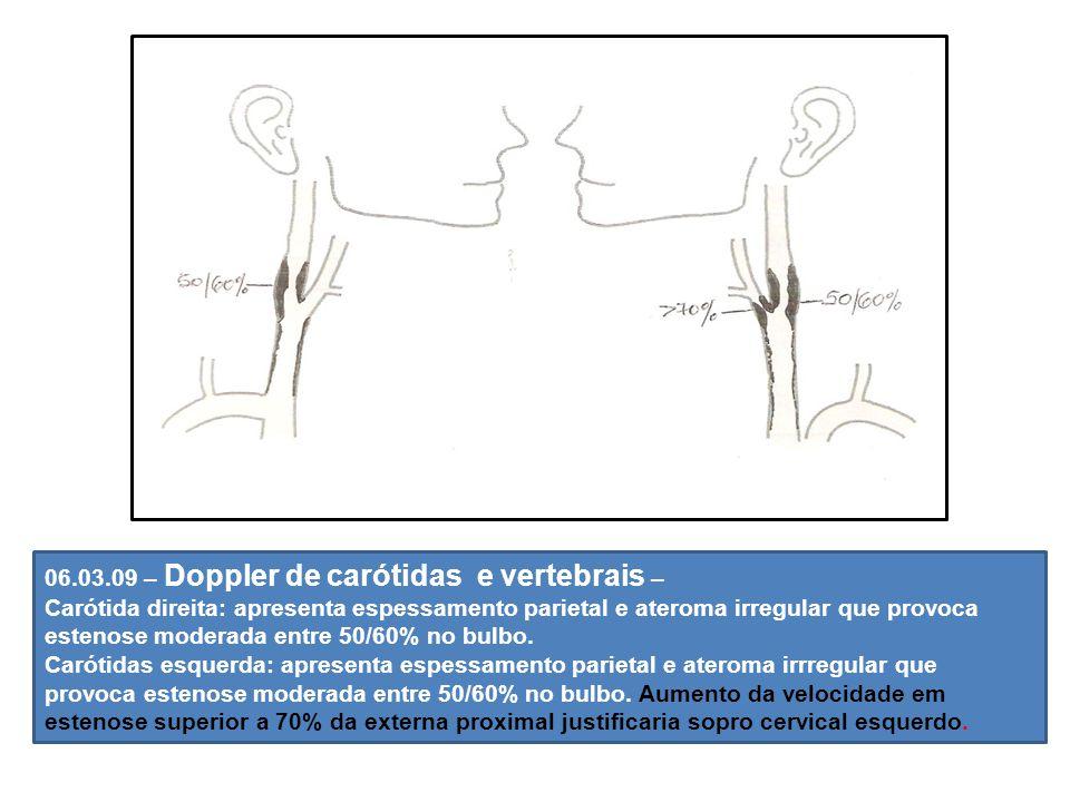 06.03.09 – Doppler de carótidas e vertebrais –