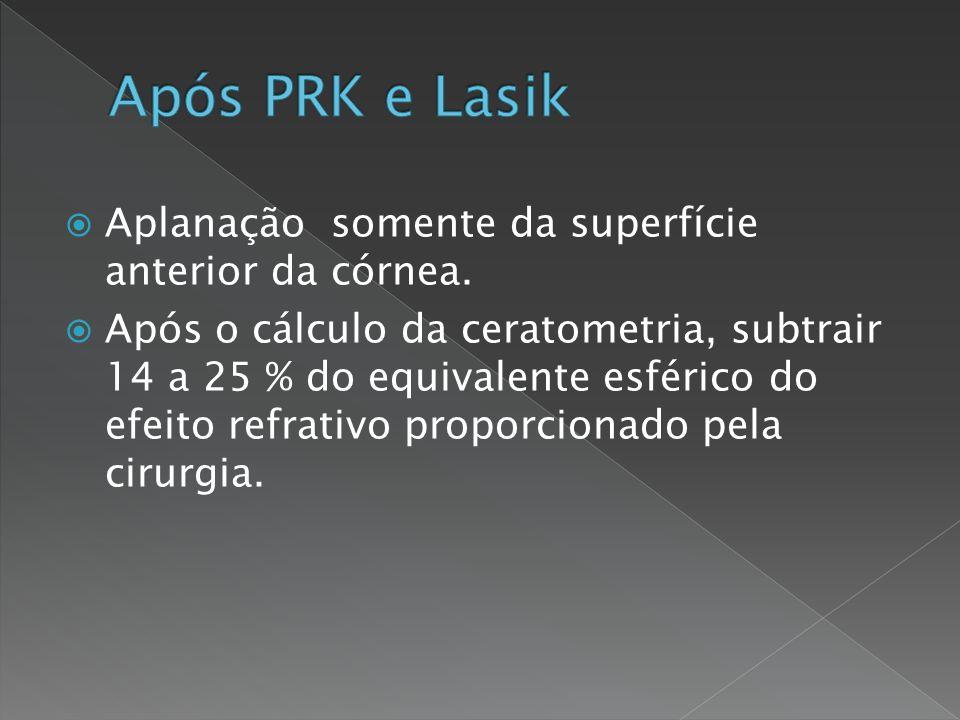 Após PRK e Lasik Aplanação somente da superfície anterior da córnea.