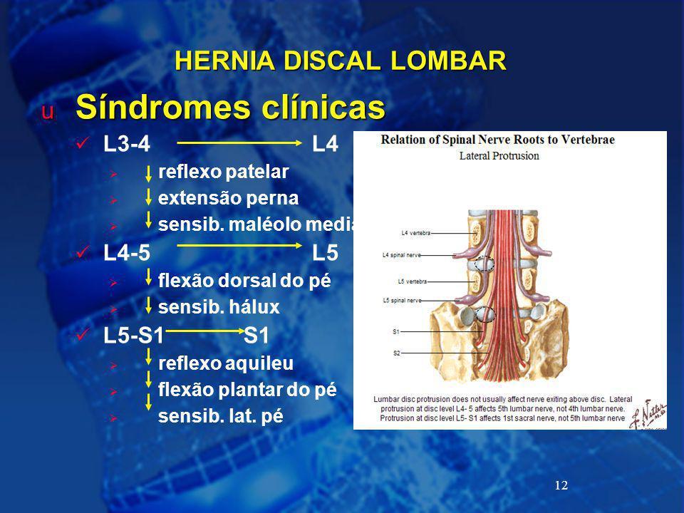 Síndromes clínicas HERNIA DISCAL LOMBAR L3-4 L4 L4-5 L5 L5-S1 S1