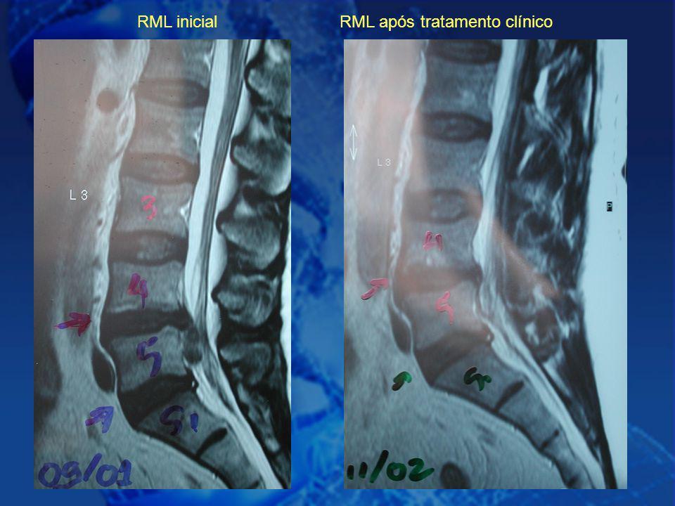 RML inicial RML após tratamento clínico
