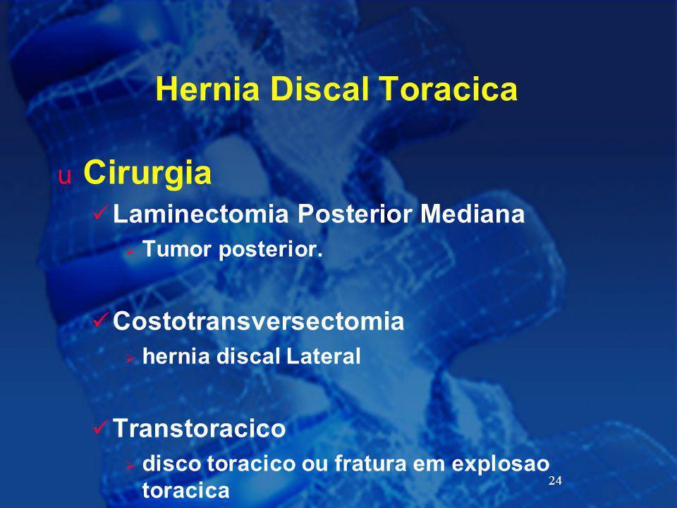 Hernia Discal Toracica