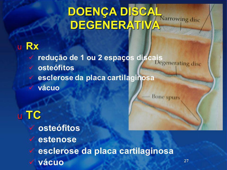 DOENÇA DISCAL DEGENERATIVA