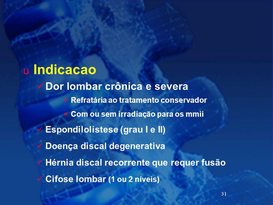 Indicacao Dor lombar crônica e severa Espondilolistese (grau I e II)