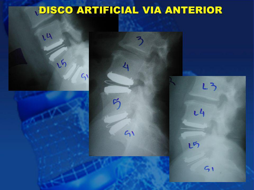 DISCO ARTIFICIAL VIA ANTERIOR