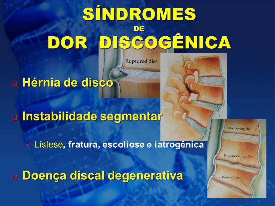 SÍNDROMES DE DOR DISCOGÊNICA