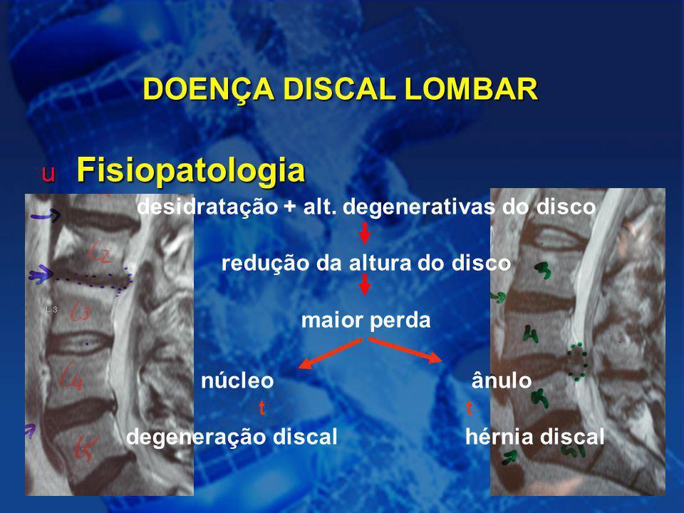 redução da altura do disco degeneração discal hérnia discal