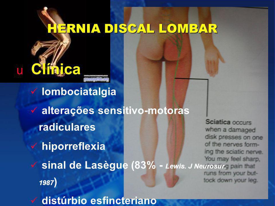 Clínica HERNIA DISCAL LOMBAR lombociatalgia