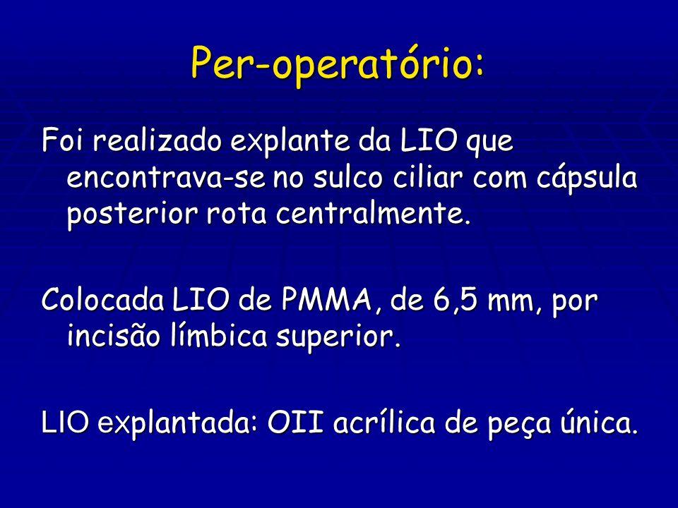 Per-operatório: Foi realizado eXplante da LIO que encontrava-se no sulco ciliar com cápsula posterior rota centralmente.