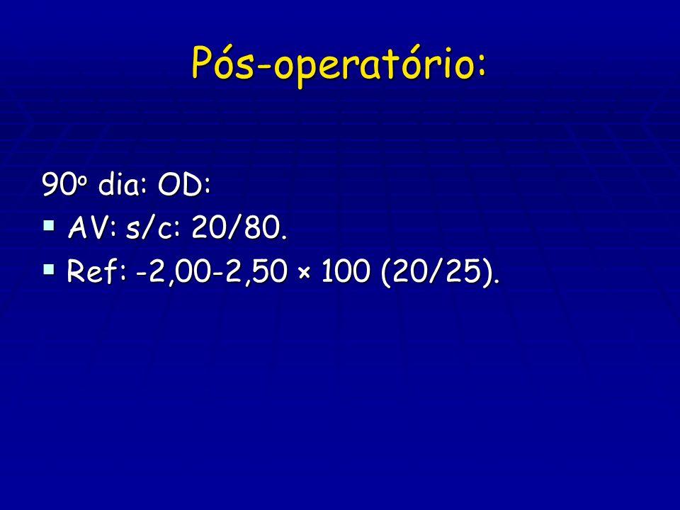 Pós-operatório: 90o dia: OD: AV: s/c: 20/80.