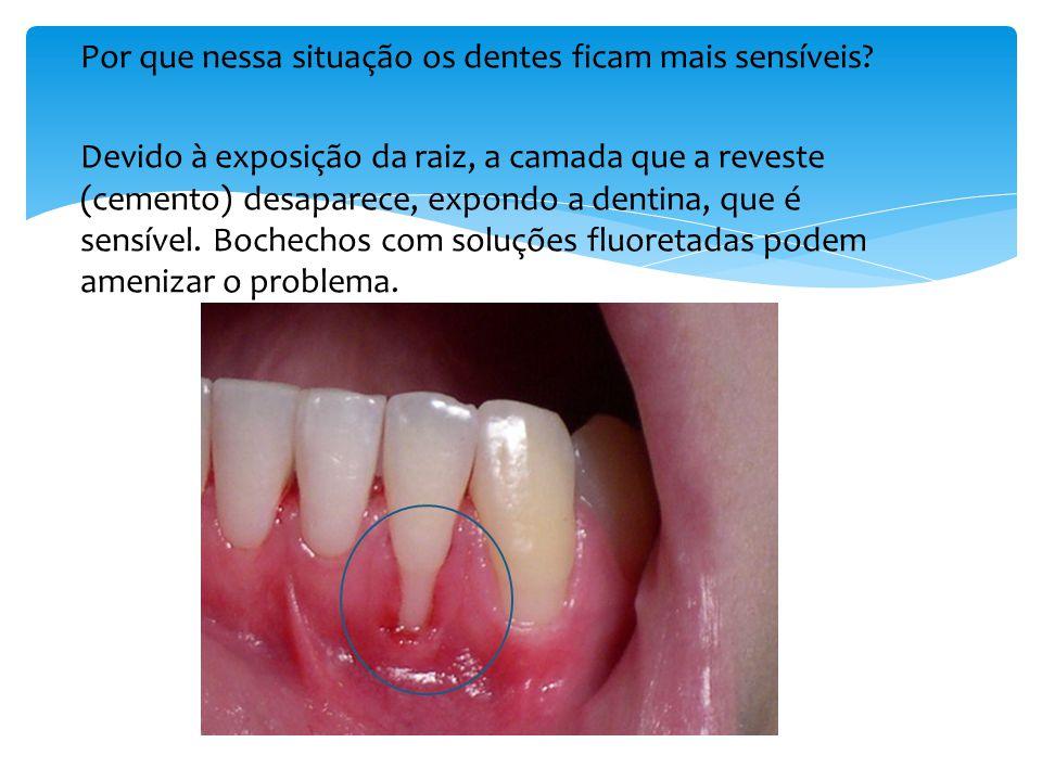 Por que nessa situação os dentes ficam mais sensíveis
