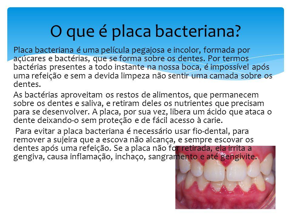 O que é placa bacteriana