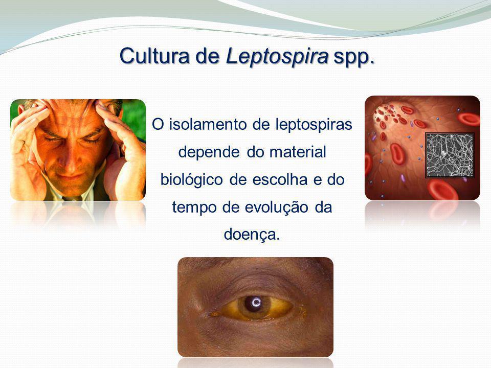 Cultura de Leptospira spp.