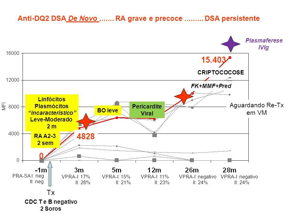 Anti-DQ2 DSA De Novo ....... RA grave e precoce ......... DSA persistente