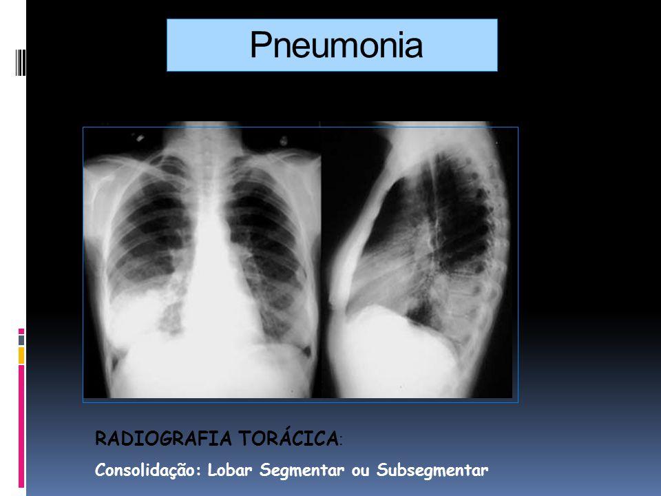 Pneumonia RADIOGRAFIA TORÁCICA: