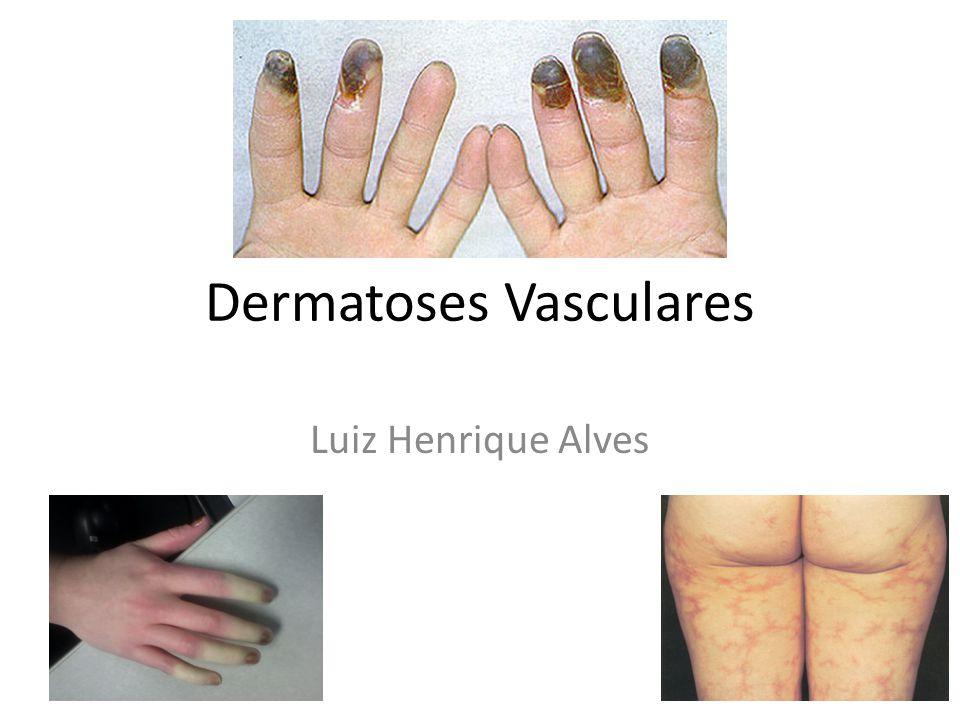 Dermatoses Vasculares