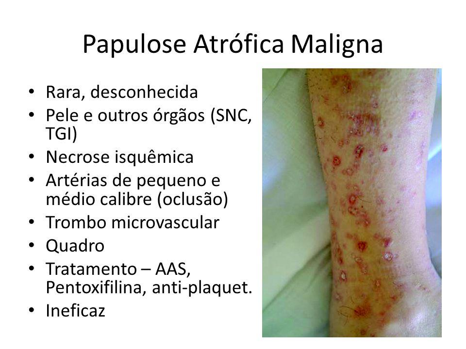 Papulose Atrófica Maligna
