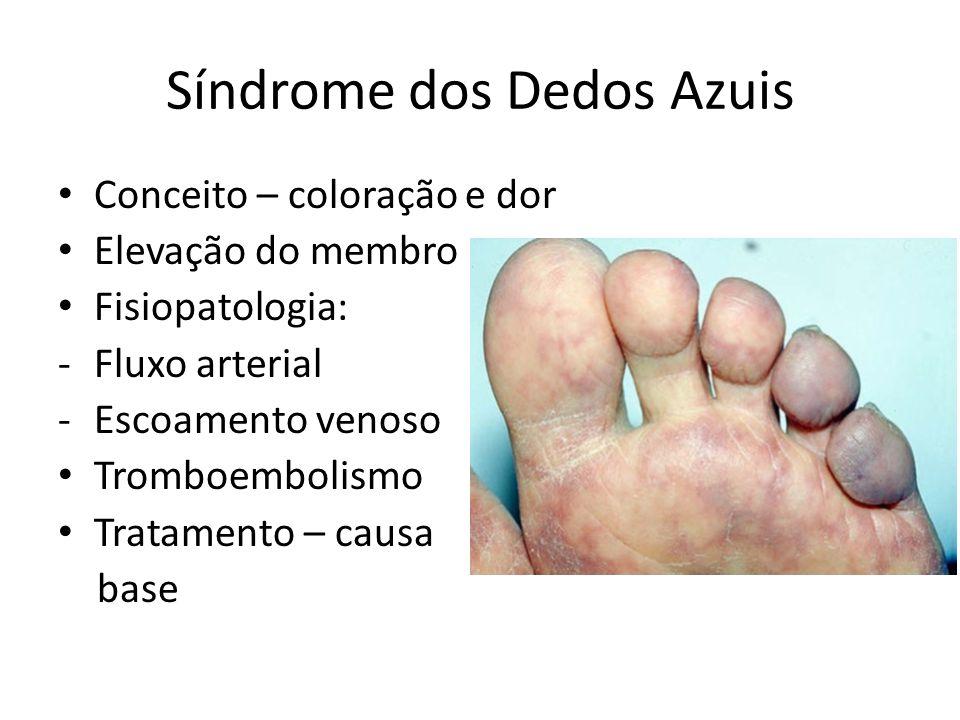 Síndrome dos Dedos Azuis