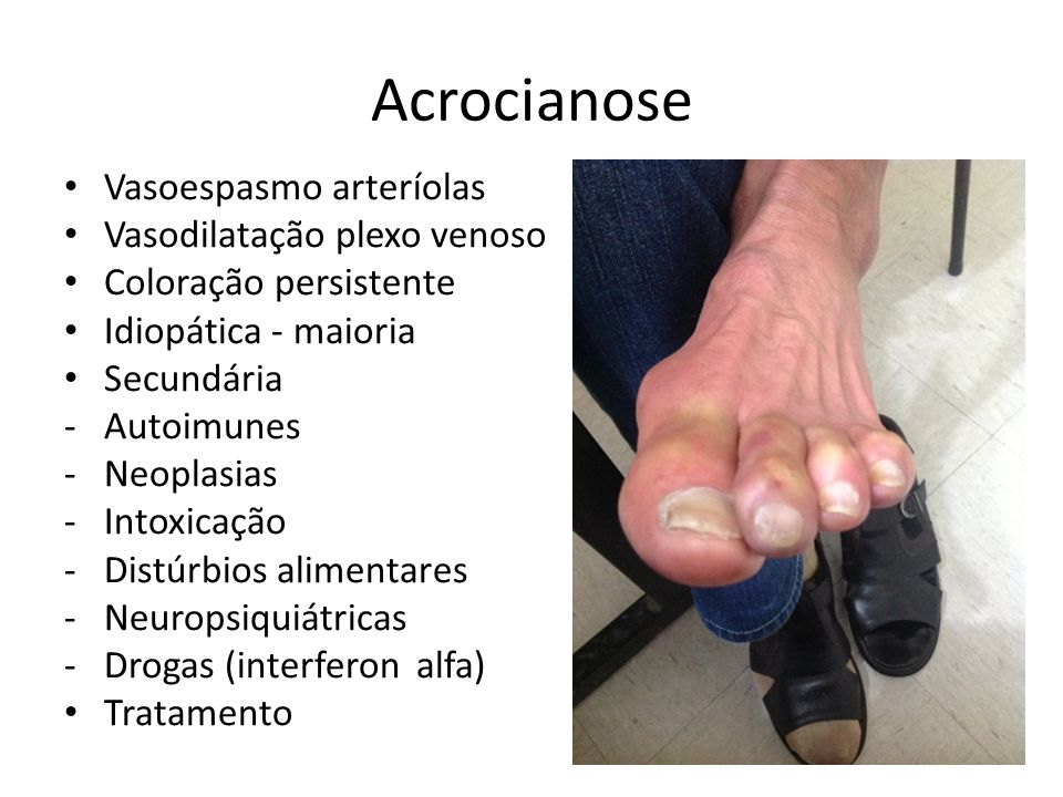 Acrocianose Vasoespasmo arteríolas Vasodilatação plexo venoso