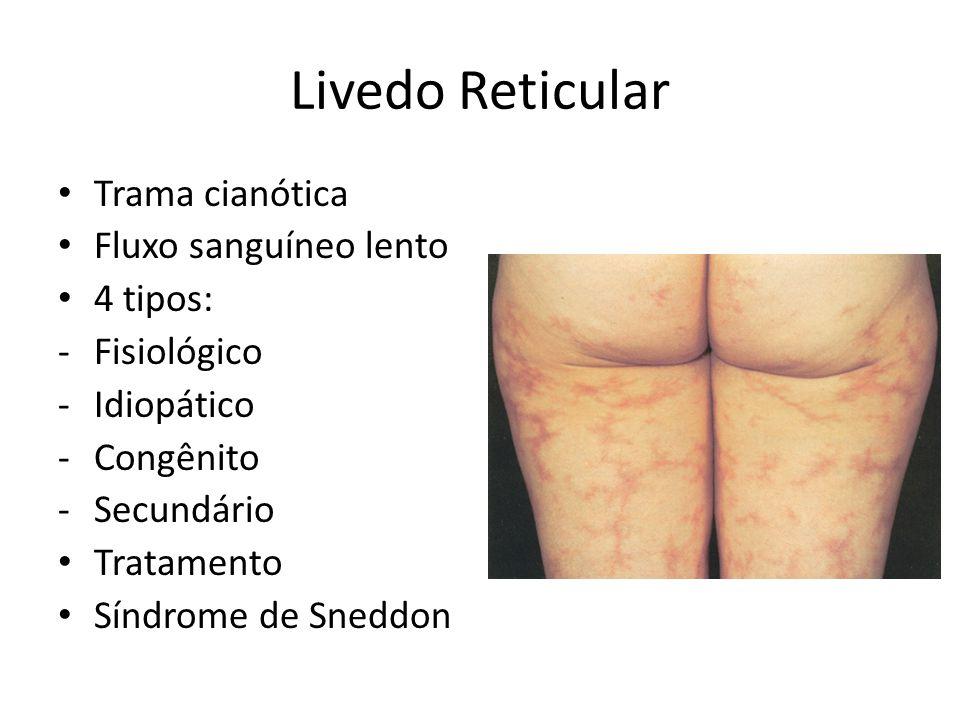 Livedo Reticular Trama cianótica Fluxo sanguíneo lento 4 tipos: