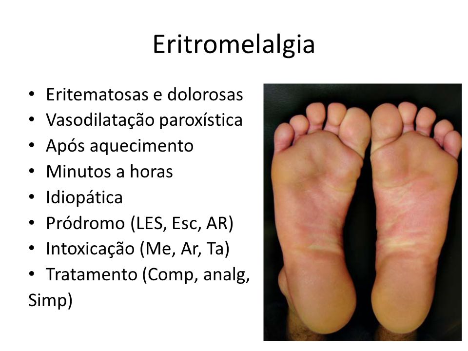 Eritromelalgia Eritematosas e dolorosas Vasodilatação paroxística