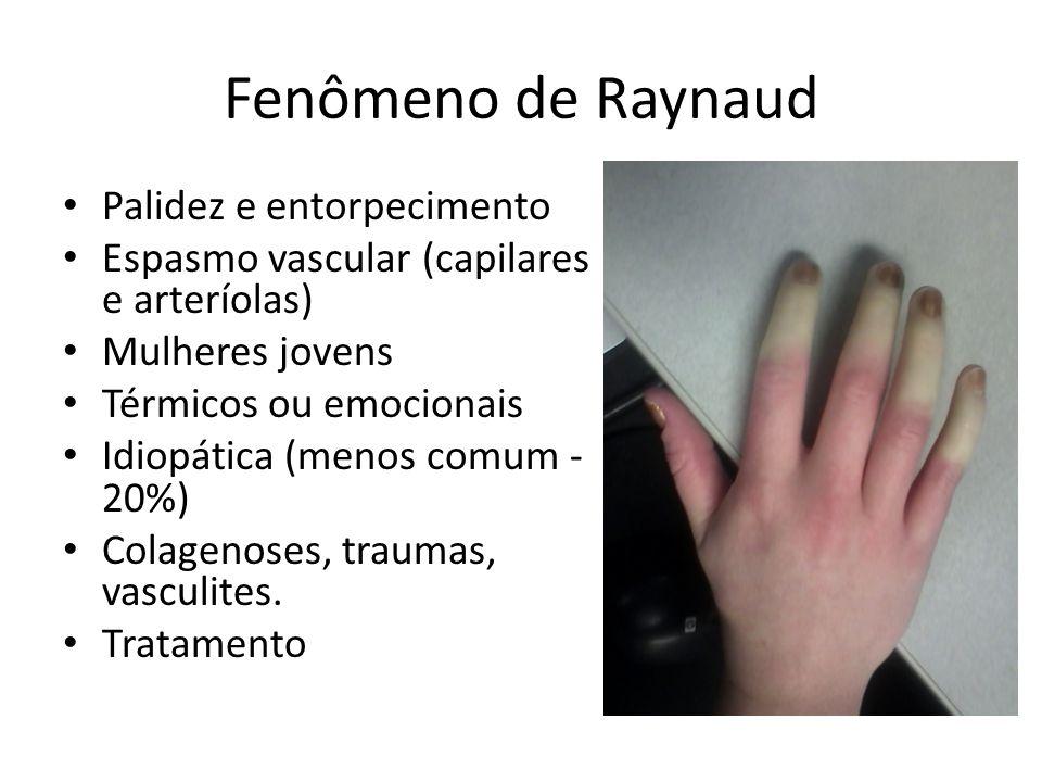 Fenômeno de Raynaud Palidez e entorpecimento