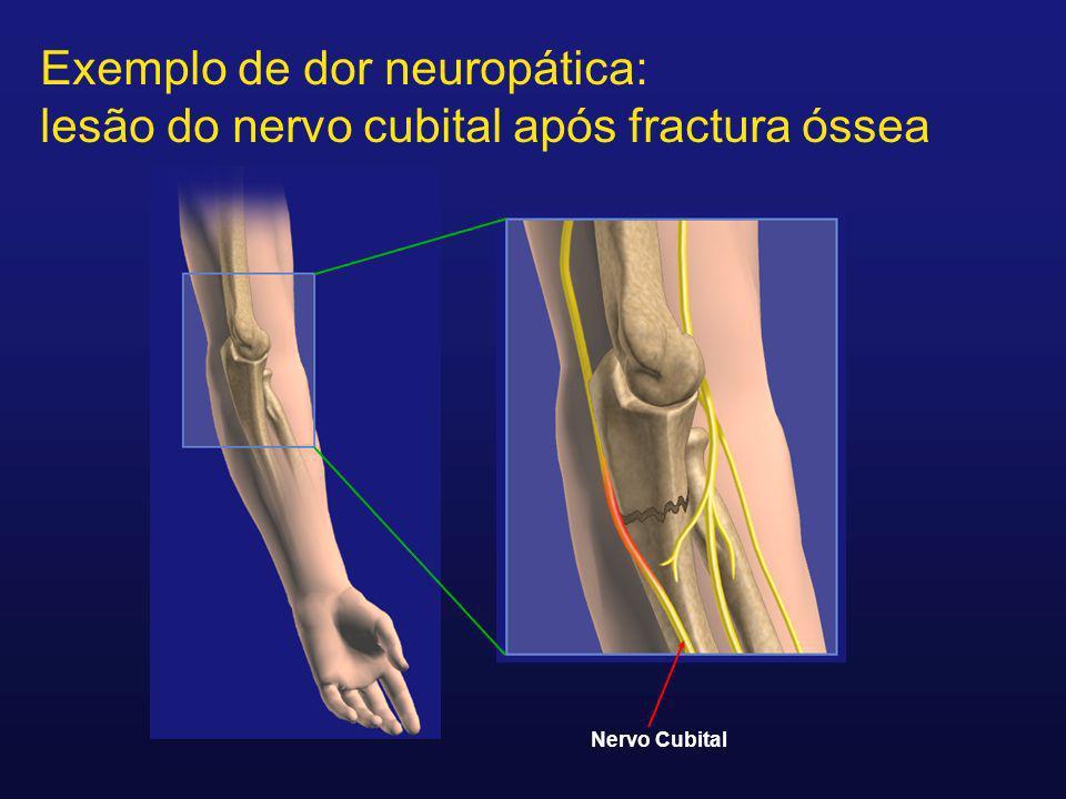 Exemplo de dor neuropática: lesão do nervo cubital após fractura óssea