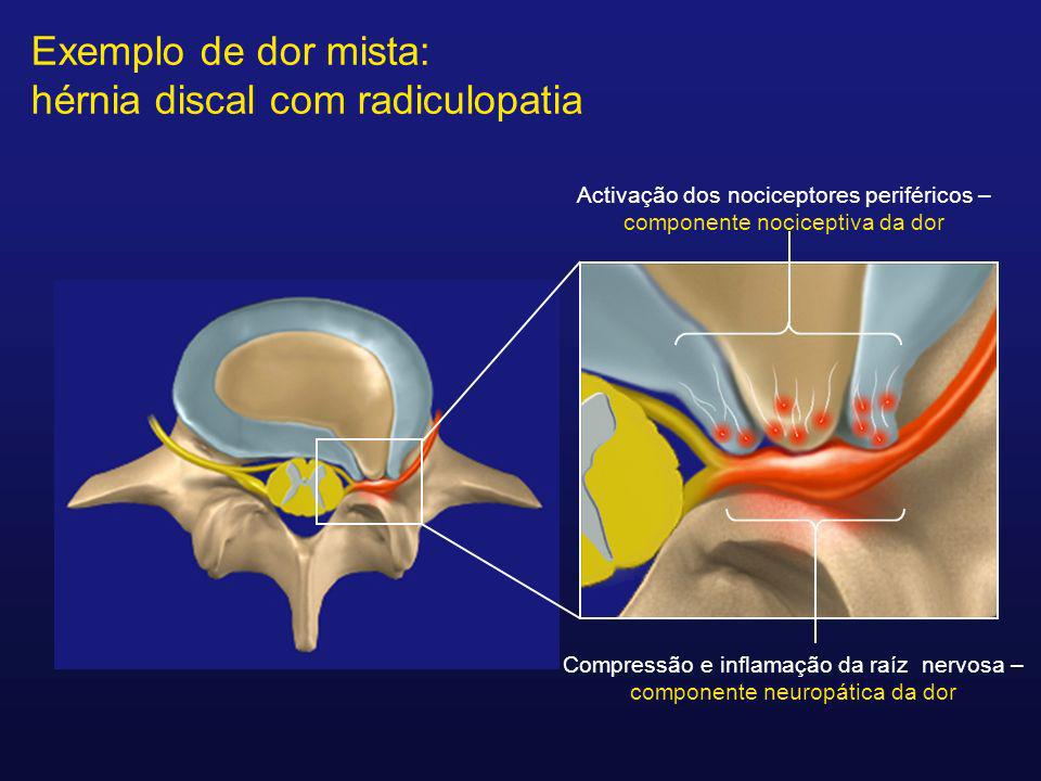 Exemplo de dor mista: hérnia discal com radiculopatia