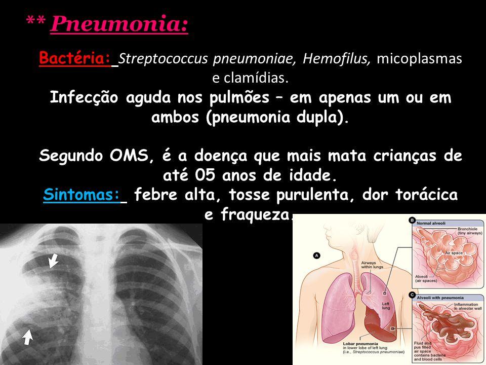 Sintomas: febre alta, tosse purulenta, dor torácica e fraqueza.