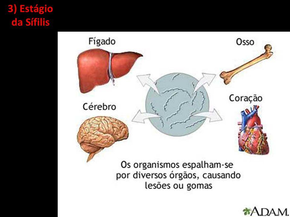 3) Estágio da Sífilis