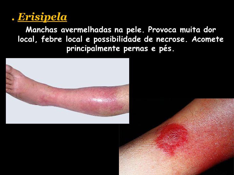 Erisipela Manchas avermelhadas na pele.