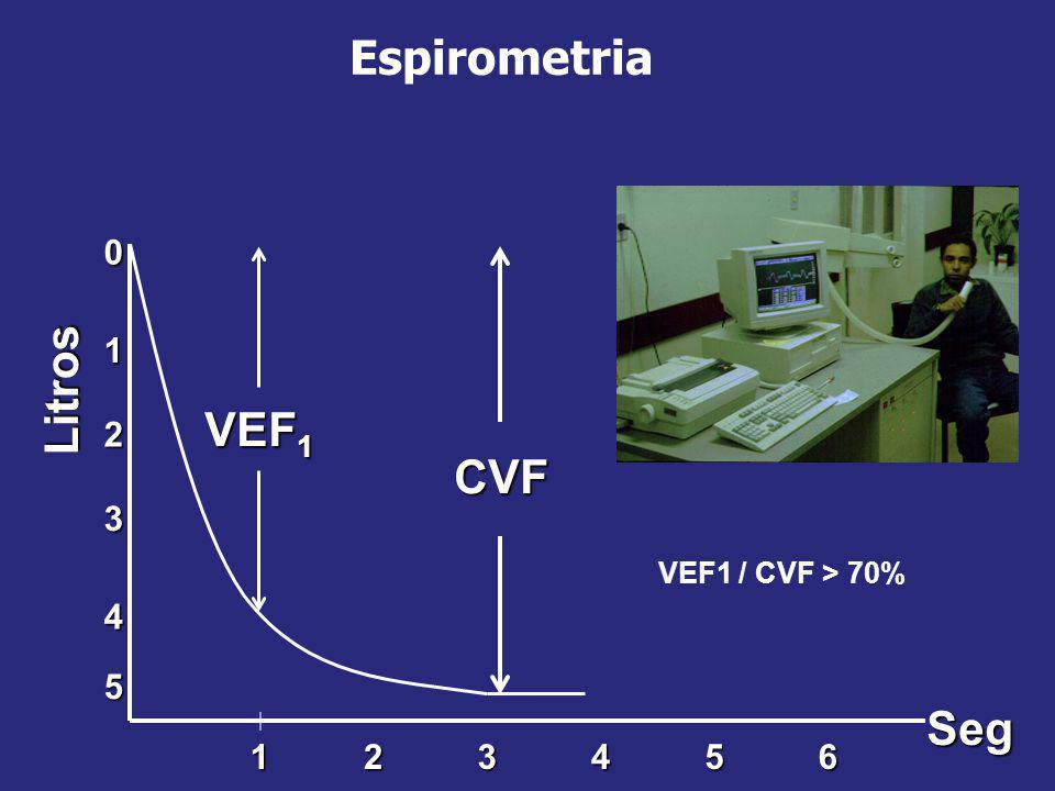 Espirometria Litros VEF1 CVF Seg 1 2 3 4 5 1 2 3 4 5 6
